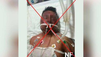 Photo of Foto del herido en hospital no es del asaltante golpeado en la combi