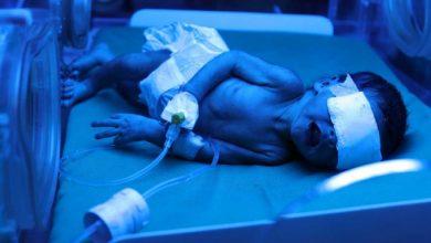 Photo of Sorprende caso de bebé que nació con anticuerpos de covid